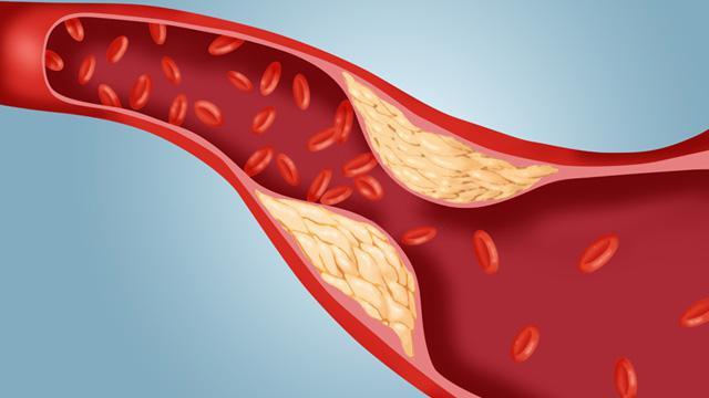 Jak obniżyć poziom cholesterolu w organizmie