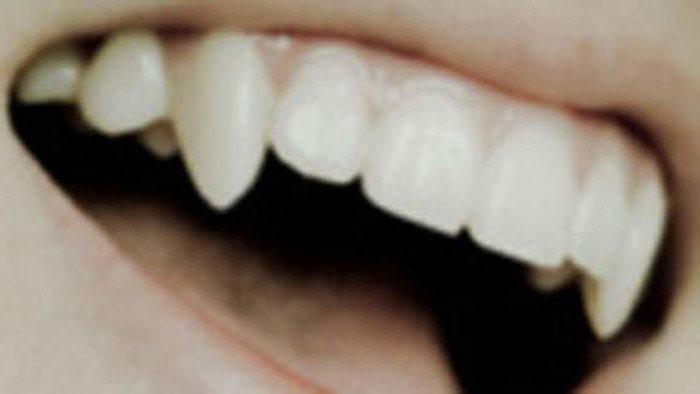 как да правиш вампирски зъби