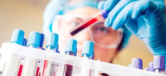 Un esame del sangue completo a stomaco vuoto può