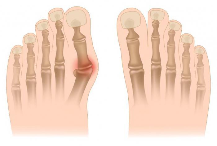 kako ukloniti kvrge na nogama