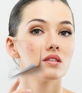come rimuovere i punti dall'acne