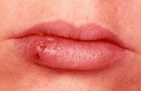 Mjesto za upoznavanje s herpesom broj 1