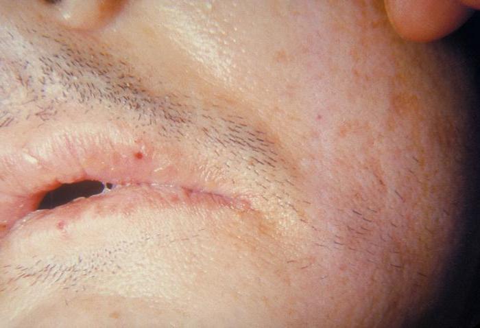 come trattare un'infezione da stafilococco