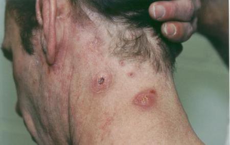 infezione della pelle da stafilococco