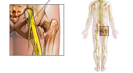 Как да излекуваме леченията за седалищния нерв? | Болки в ставите
