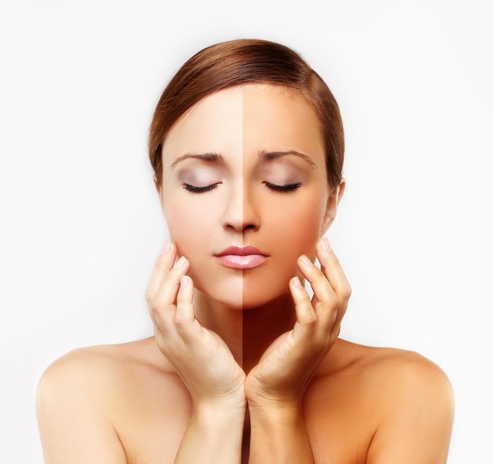 как да избелите кожата си
