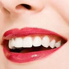 Могу ли избијелити зубе код куће?