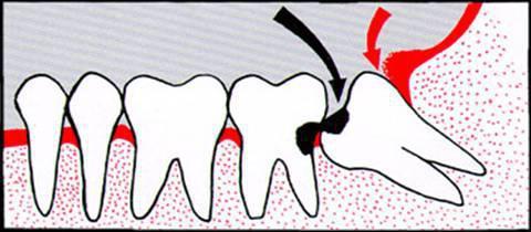 zubi donje čeljusti