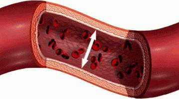 ipertensione 2 gradi sintomi