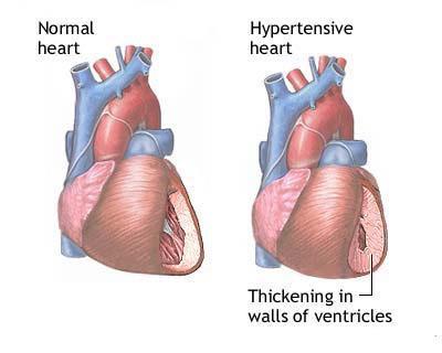 rischio di ipertensione di grado 2 2