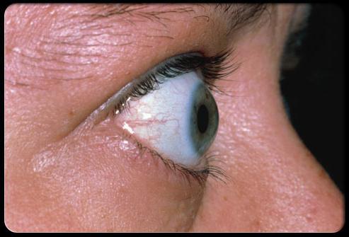 simptomi hipertiroidizma
