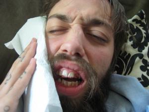 ból zęba po leczeniu