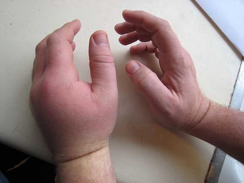 Отечена рука што треба учинити