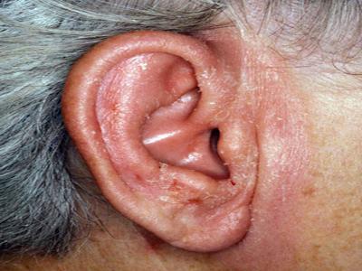 Oteklo uho