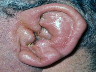 Bolno uho