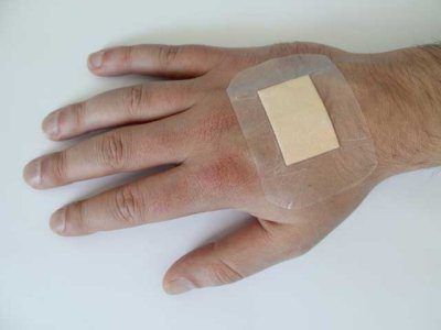 употреба масти за мале ране