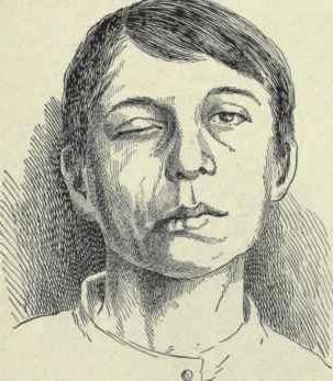 възпаление на симптомите на лицевия нерв