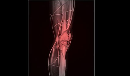 infiammazione del periostio della gamba
