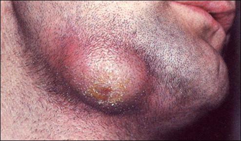infiammazione del trattamento periostico dei rimedi popolari