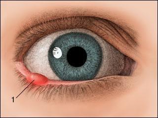 третман јечма на оку