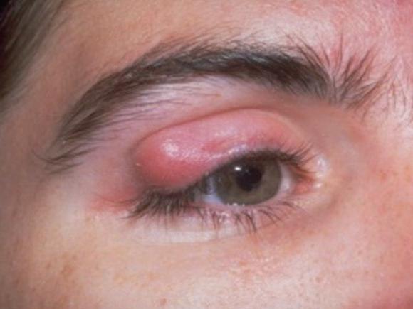 како лечити јечам на оку