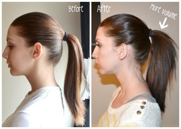 rastu kosu tijekom trudnoće