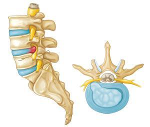 trattamento di ernia spinale senza chirurgia