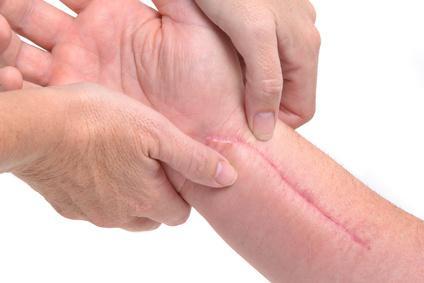 лечение на келоидни белези