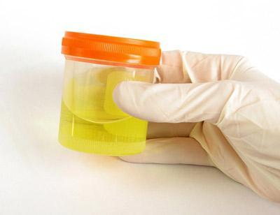 Ketonska tijela u urinu