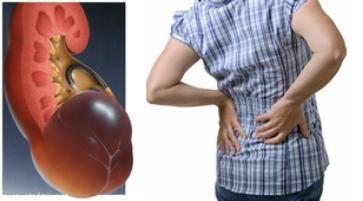 ledvična sinusna cista