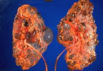 ledvična cista