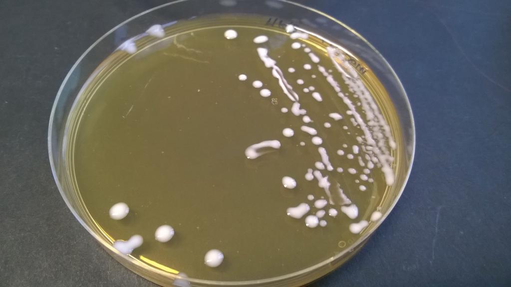 Rilevato lactobacillus spp