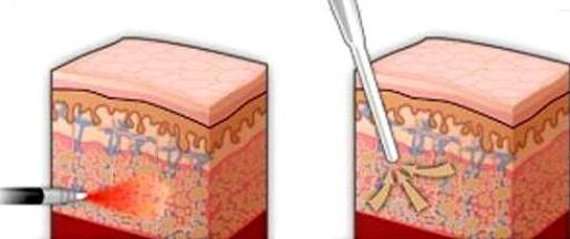 cos'è la laser lipolisi per le revisioni del corpo