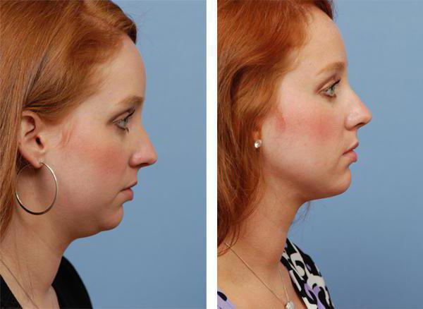 recensioni di laser lipolisi facciale
