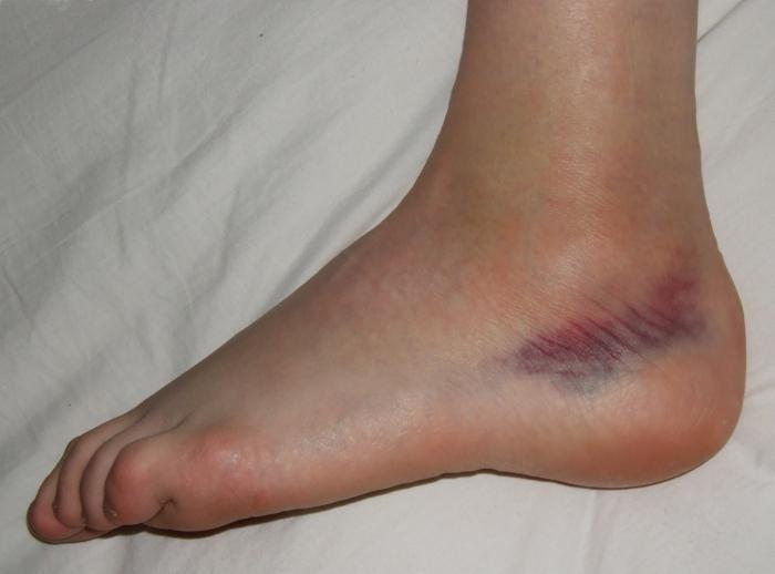 Rottura della caviglia