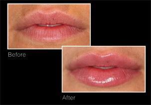 proširenje usana, recenzije hijaluronske kiseline