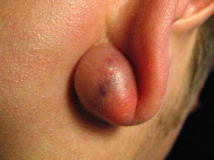rimozione del lipoma sulla testa