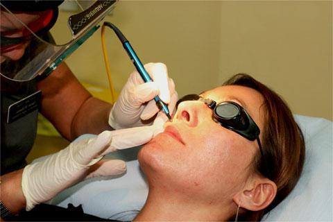 rimozione del lipoma laser