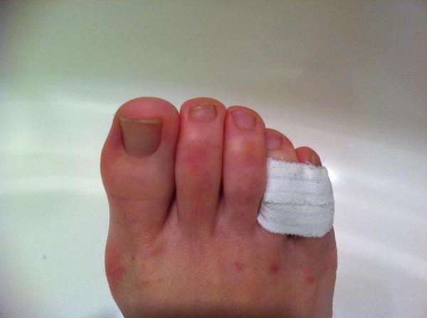 Frattura del mignolo sulla gamba, trattamento
