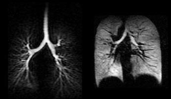 računalna tomografija pluća
