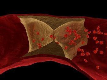 Lupus anticoagulante