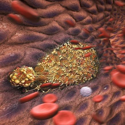 Lupusová antikoagulační dávka