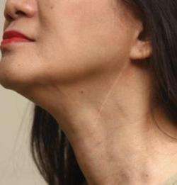 linfonodi ingrossati nel collo