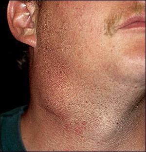 linfonodi cervicali ingrossati
