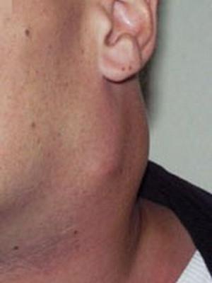 simptomi limfogranulomatoze