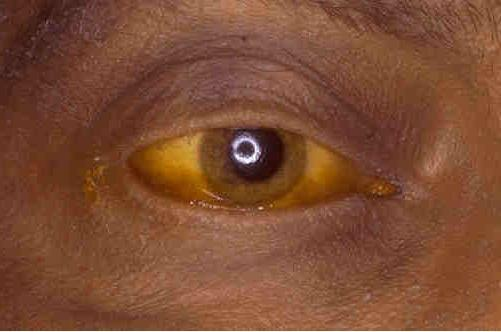 симптоми на човешкото чернодробно заболяване