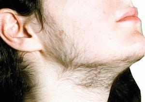 zvýšené mužské hormony u žen