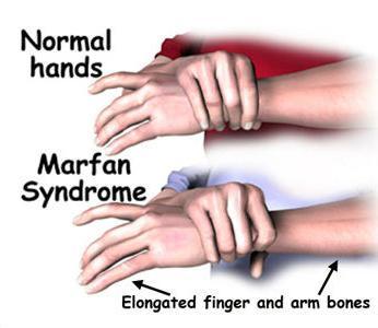 Symptomy Marfanova syndromu