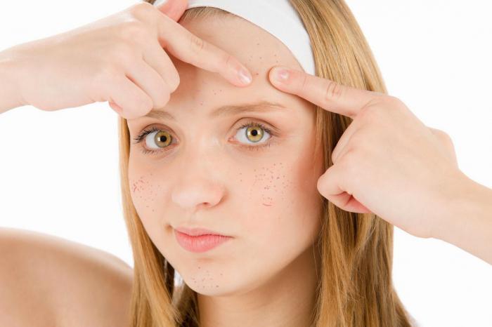 maschere dell'acne per adolescenti