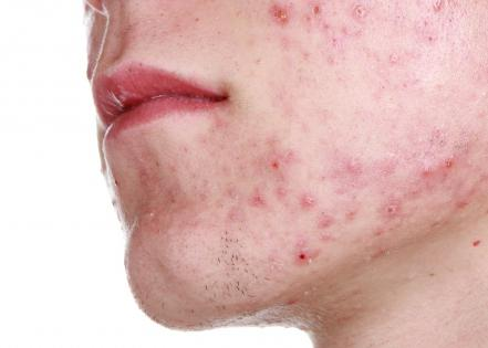 Liniment sintomicin akne